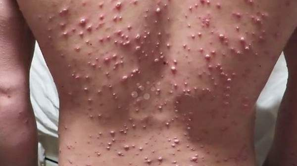 adult chicken pox duration