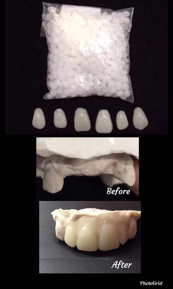 Missing Tooth Veneer Kit Front 6 Teeth Shade A2 False Teeth Etsy In 2020 Veneers Teeth Dental Veneers Dental Adhesive