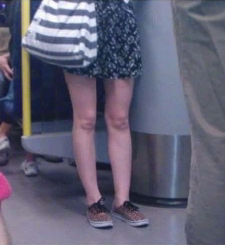 Baby Face Knees - https://shareitsfunny.com/baby-face-knees/ - Funny Pictures on  Share Its Funny  #babyfaceknees