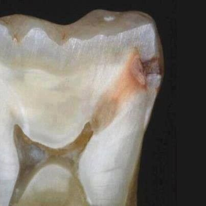 Amazing Tooth Photography #zerodonto #dental #photography #dentistry