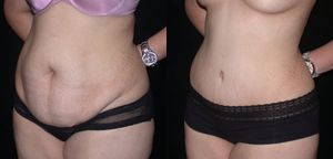 Dr Peters Seattle Tummy Tuck Before and After Photos