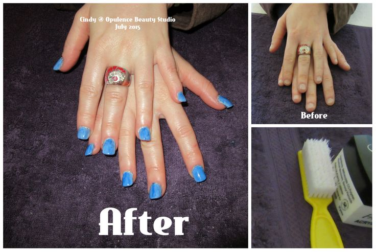 I love enhancing nails like these, helping someone to feel less self conscious about there hands.