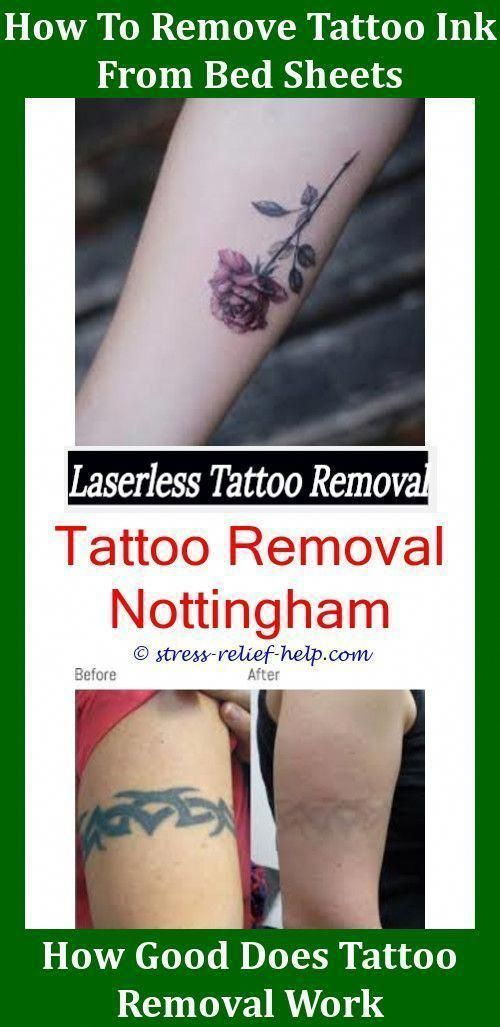 Do You Need Bandages For Laser Tattoo Removal Hypopigmentation
