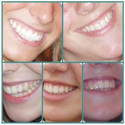 Una caries no es peligrosa y se puede tratar de forma adecuada con nuestro dentista, sin embargo, lo ideal es evitar las caries para que la ...
