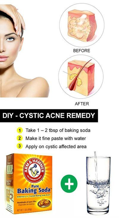 """Our DIY hacks to get rid of pimples were great and all, but not everyone's skin issues are that simple. According to WebMD, cystic acne """"happens when [bacteria] goes deep into your skin, creating a red, tender bump that's full of pus."""" This severe form of acne """"may hurt or itch"""" and """"if a cyst bursts, the infection can spread, causing more breakouts."""" Ouch."""