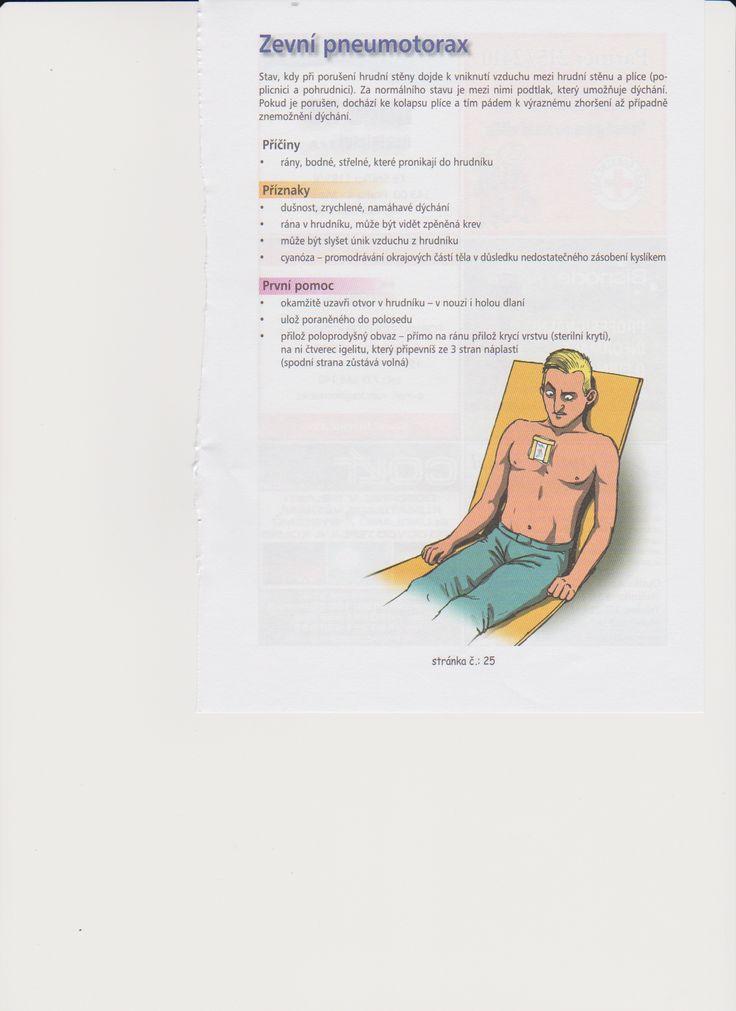 zevní pneumotorax