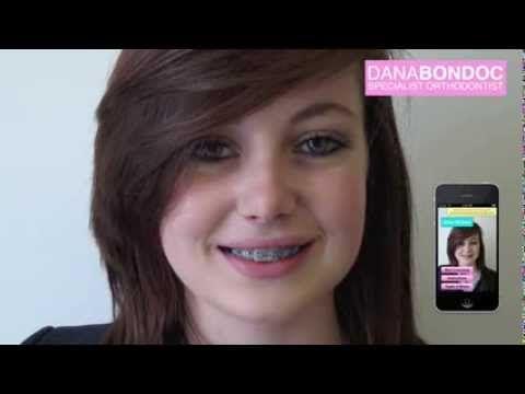 Have you tried the Colour My Brace app? Follow link to get app. https://itunes.apple.com/gb/app/colour-my-brace/id713664931?mt=8
