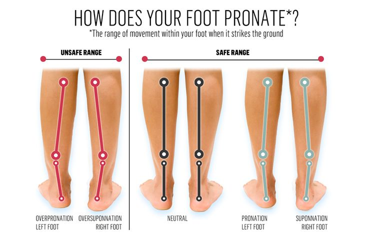 Image result for feet pronation | 65 | Pinterest