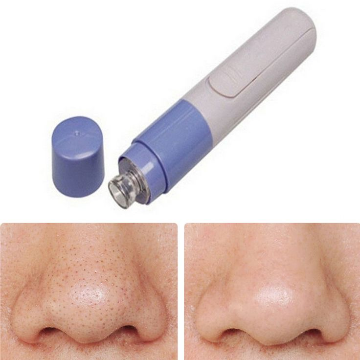 Use Gentle, Deep Cleansing Suction to remove Skin Impurities  Improves skin tone and pore appearance  Essential Facial Care Tool. Clinically effective for skin toning  Package Contents: 1 x Facial Pore Cleanser; Requires 1 x AA batteries to operate (not included)