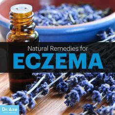Itchy, dry, flaky and red skin....natural remedies for the skin issue eczema.