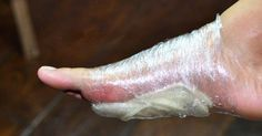 Trik babičky: Přiložte si plátky cibule na chodidla a za noc vyléčíte mnohé nemoci