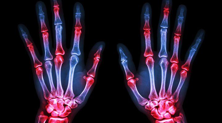 Rheumatoid Arthritis - RA, Arthritis, Rheumatoid - Life Extension Health Concern