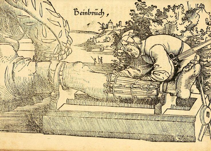 Artist: Hans Wechtlin, Title: Feldbuch der Wundartzney, Page: 117, Date: 1528