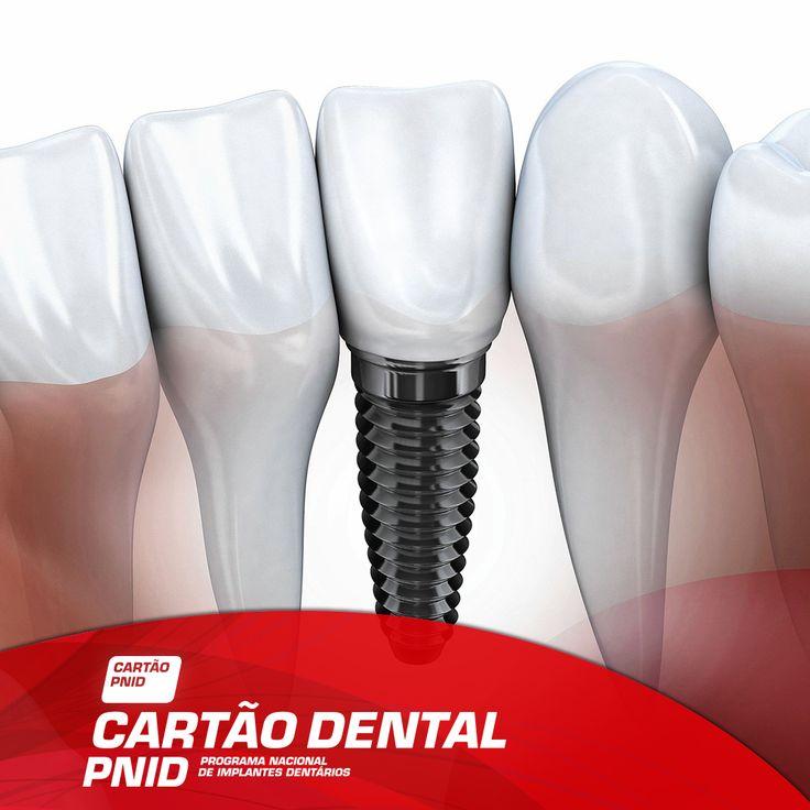 Ter o seu sorriso de volta pode estar à distância de um Implante Dentário! Com a nossa experiência na reabilitação oral tudo fica mais fácil  http://www.pnid.pt/cartaodentalpnid/#saber-mais