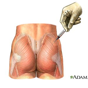 inject steroids into buttock
