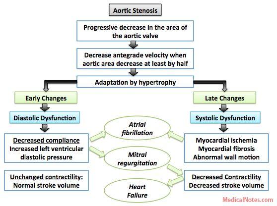 MedicosNotes.com: Pathophysiology of Aortic stenosis