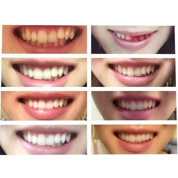 #閲覧注意# 歯科矯正始めて4ヶ月 左上がやる前そして右下が現在 今日は親知らずを抜いてきます.. #閲覧注意#歯科矯正#矯正#歯医者#歯#口#dental#orthodontic#orthodontics#invisalign#インビザライン#マウスピース矯正 #右上おかしいけど宣伝費的なのもらえんかな笑笑 by ___takanu Our Invisalign Page: http://www.myimagedental.com/services/cosmetic-dentistry/invisalign/ Other Cosmetic Dentistry services we offer: http://www.myimagedental.com/services/cosmetic-dentistry Google My Business: https://plus.google.com/ImageDentalStockton/about Our Yelp Page: http://www.yelp.com/biz/image-dental-stockton-3 Our…