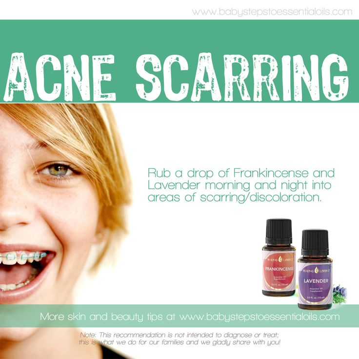Acne Scar Remedy With Young Living Essential Oils Young