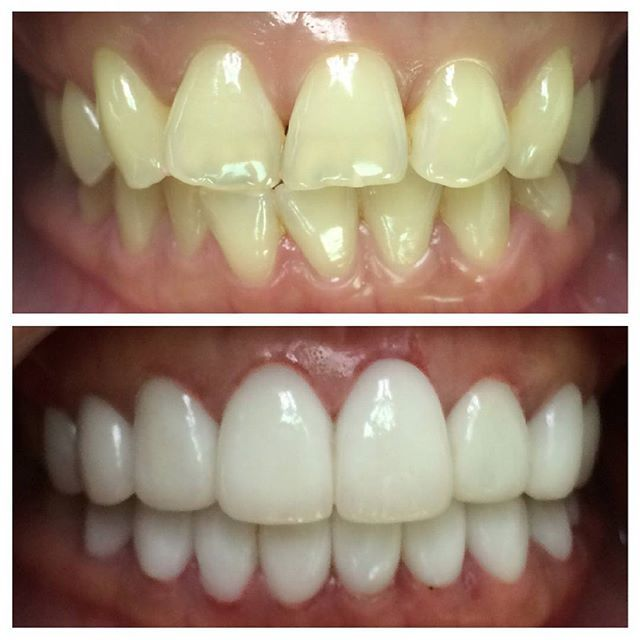 #mulpix Before and after of a 25yr old female flight attendant patient with yellowish crooked teeth treated with Gum contouring and Porcelain Veneers. Case finished in 8 working days requiring 3 visits. Signature Smile Makeover by Adajar. Because perfectly white teeth is the new sexy. #dentist #teeth #cosmeticdentist #veneersphilippines #smiles #celebrity #Celebritydentist #happy
