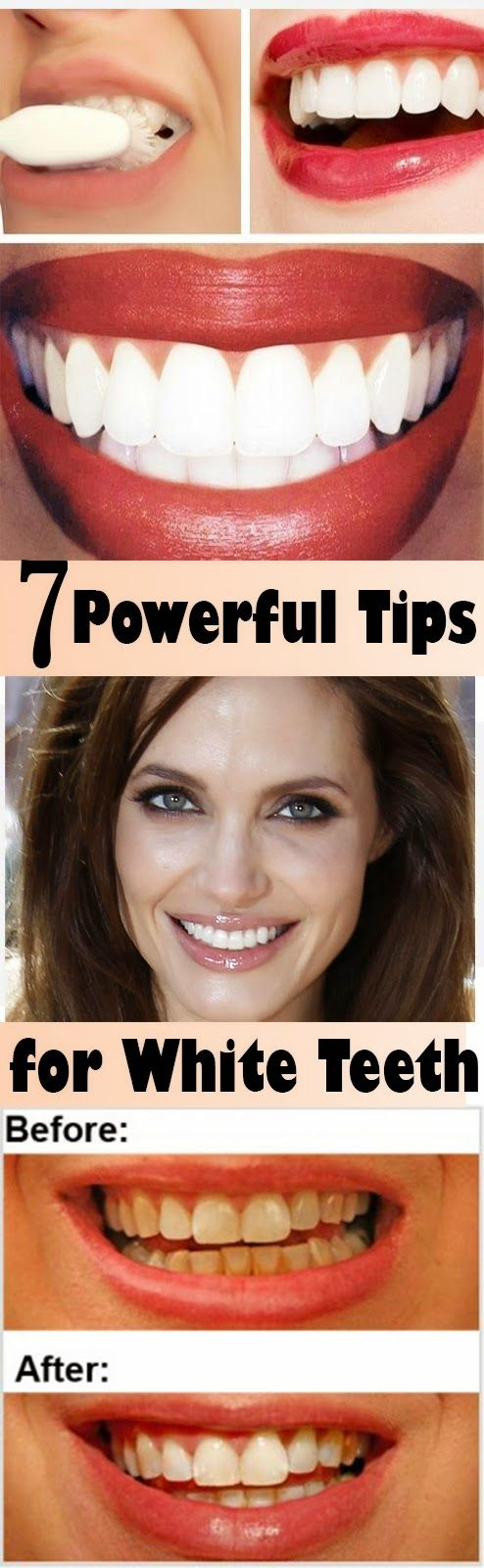 7 Powerful Tips For White Teeth
