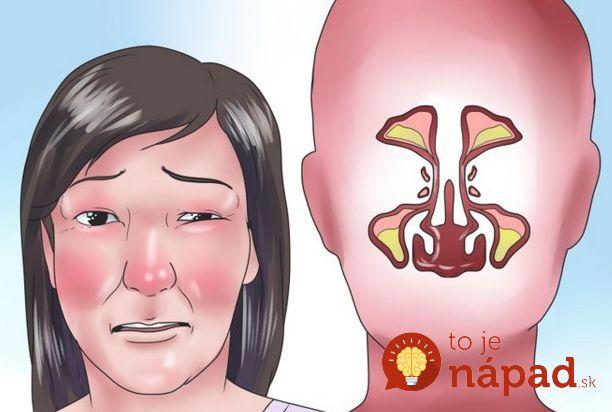 Máte upchatý nos? Tento trik ho uvoľní za 60 sekúnd!