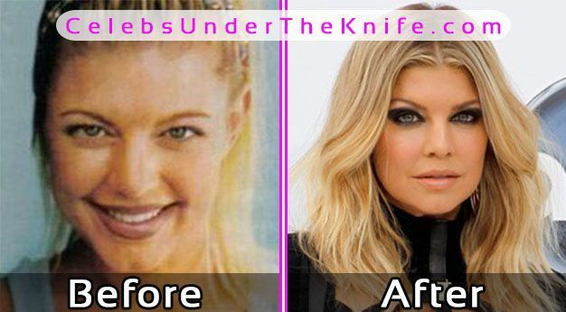 Fergie Plastic Surgery Before After Photos #celebsundertheknife #celebs #celebrity #plasticsurgery #celebritysurgery