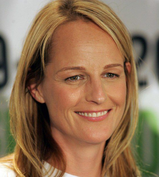 Helen Hunt Facelift Plastic Surgery Before And After