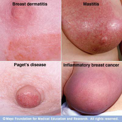 painful breasts does this mean cancer jpg 422x640