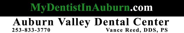 Dental Services Auburn, Kent, Federal Way, Renton, Tacoma And Puyallup