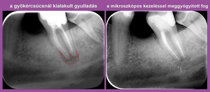 A mikroszkópos gyökérkezelés újra fogat mentett | Uniklinik.hu - Együtt a specialisták