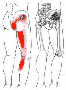 Gluteus Minimus - Trigger Point Map