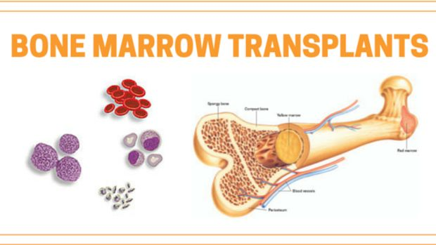 What is a Bone Marrow Transplant? Types, Procedure and Risks and complications involved in a bone marrow transplant. All you want to know about procedure