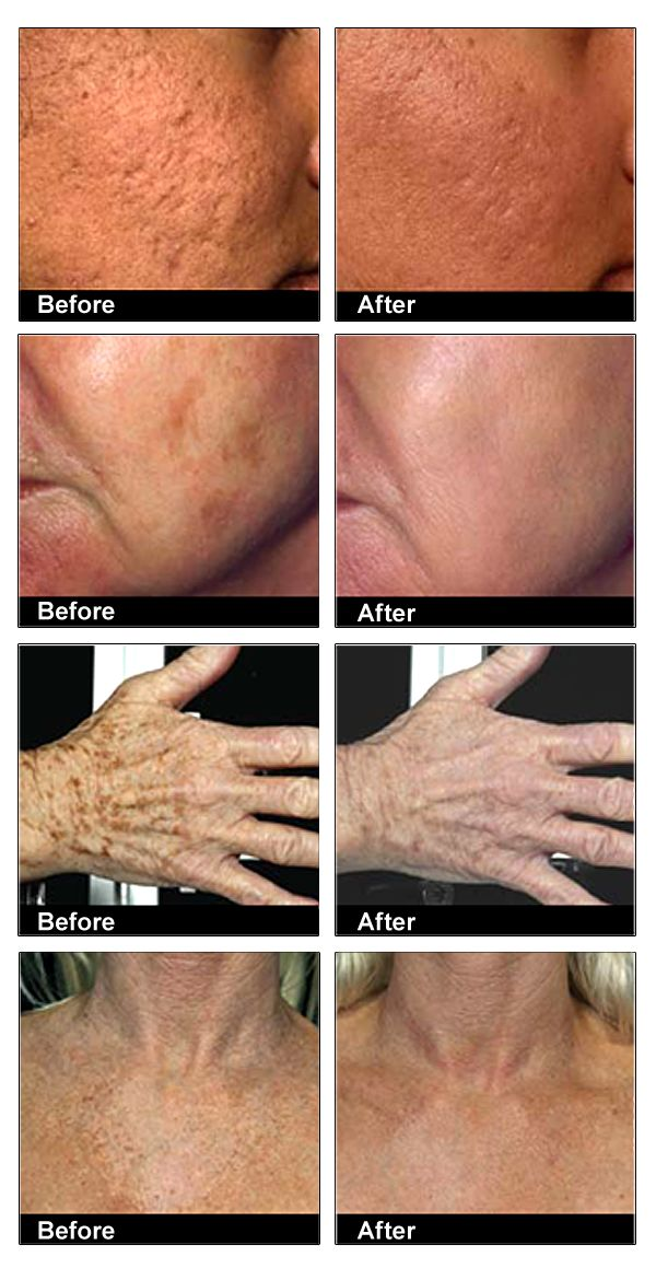 1000 Images About Before And After Arbonne Photos On
