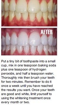 You could try this method, but don't swallow the hydrogen peroxide (these results might be exaggerated) or you could come in and pay a one time fee and sign up for our Nice and Bright Teeth Whitening program for life!