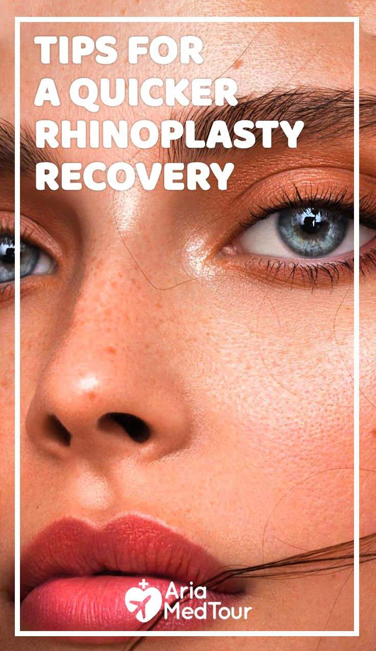 Follow these steps for a quick rhinoplasty recovery