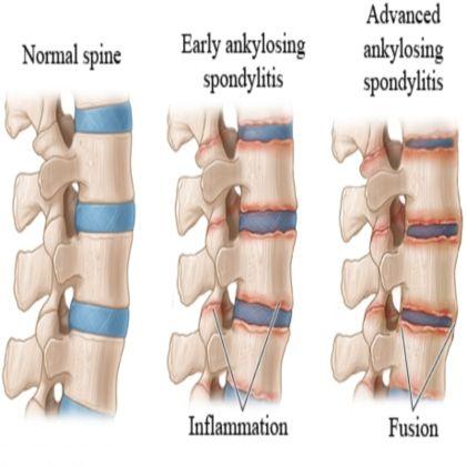 How-to-Treat-Advanced-Spondylitis.jpg 420×420 pixels