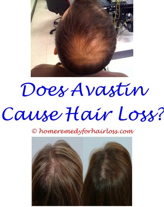 relaxer burns hair loss - natural hair loss remedies dr oz.dim and hair loss hair loss problem solution what contributes to hair loss 8698571805