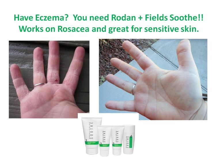 I have Psoriasis or Eczema or Rosacea or just plain 1