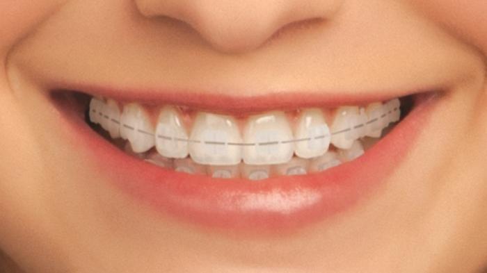 4 Bahan Herbal Pemutih Gigi Yang Mampu Tingkatkan Rasa Percaya Diri