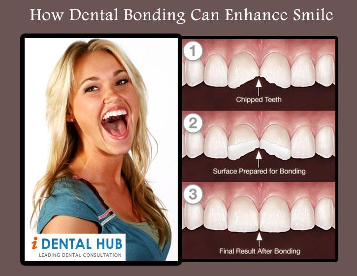 Know about how dental bonding can enhance smile.