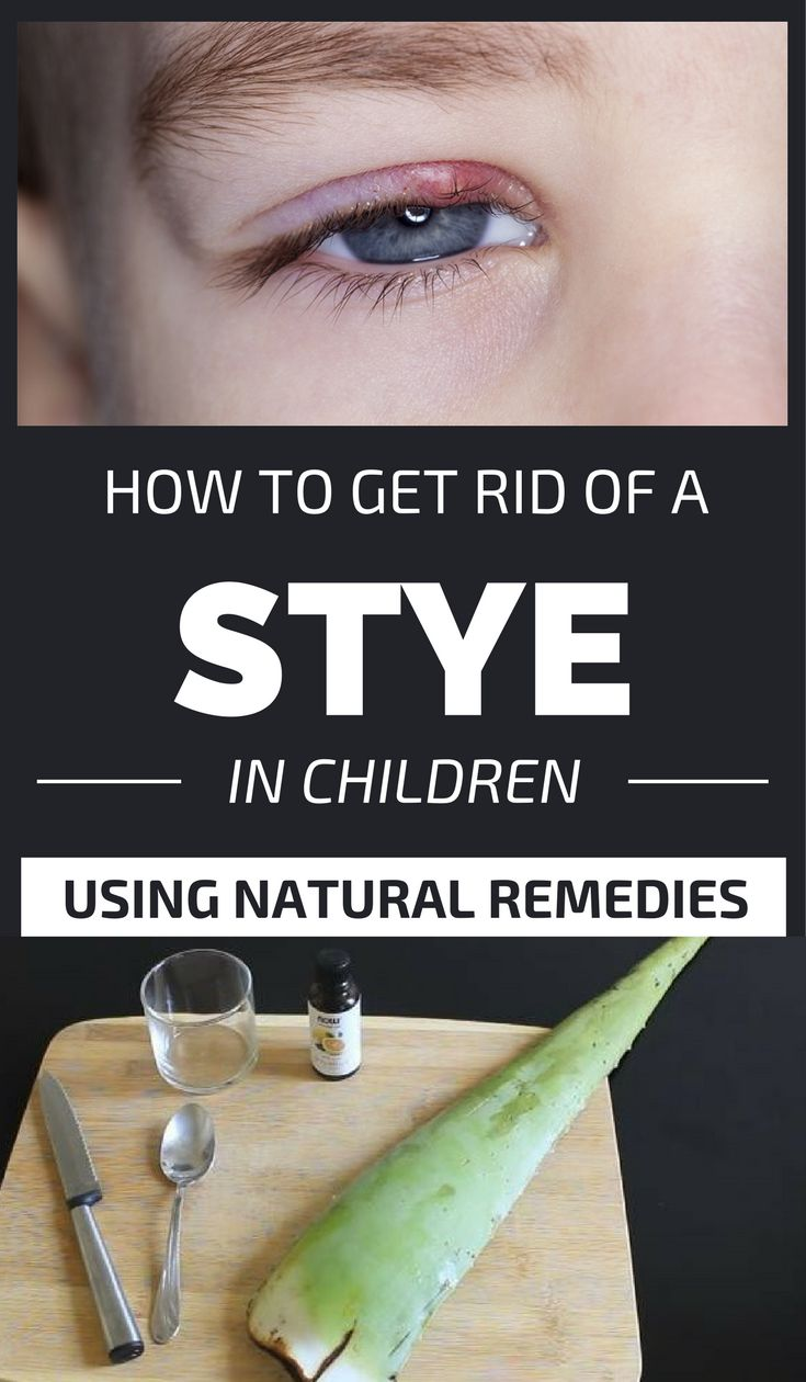 How to get rid of a stye in children using natural