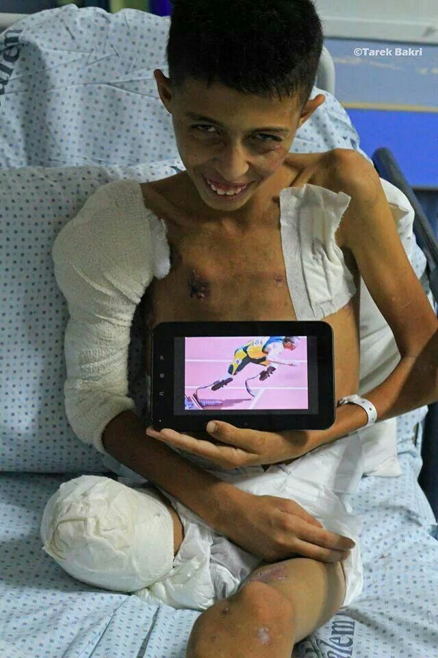 Heartbreaking! Mohammed Siam,14 years old, passed away on 18th November 2014, from injuries recieved during Isreals bombardment of Gaza. 12 members of his family were also murdered. Mohammed was starting to improve and had got an artificial leg but died unexpectedly during surgery. Rest in Peace little angel.