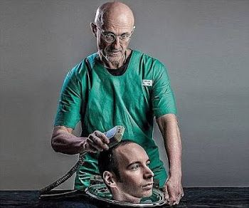 Breaking News: The 1st Human Head Transplant Carried Out Successful In China