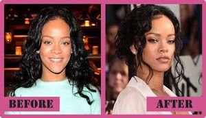 Descubre cómo han cambiado las famosas y qué retoques se hacen con estos antes y después