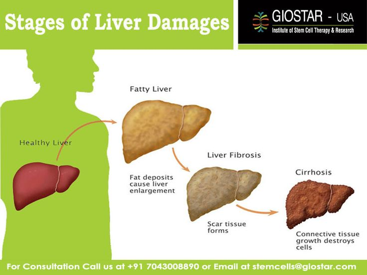 aids treatment liver damage - 736×552