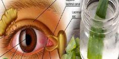 El sentido de la visión es de los sentidos más importantes que tiene la especie humana, así que el cuidado y la prevención de la misma deben ser muy cautel