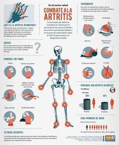 La artritis es la inflamación de las articulaciones (los puntos donde se unen los huesos) en una o más áreas del cuerpo. Hay más de 100 tipos diferentes de artritis, todas las cuales tienen diferentes causas y métodos de tratamiento. Los síntomas de la artritis por lo general aparecen gradualmente pero también pueden ocurrir repentinamente. …
