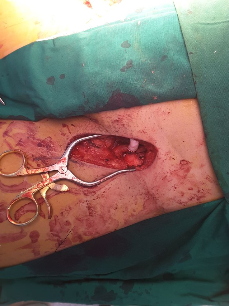 Femoro femoral bypass with vascutex. Acute Limb Ischemic