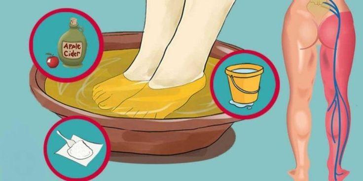 Tato jednoduchá metoda vám pomůže uvolnit bolest sedacího nervu