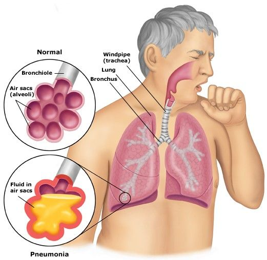 25 best ideas about symptoms of pneumonia on